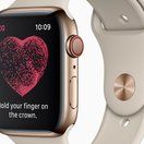 Apple Watch ECG: Should you really be able to do an ECG yourself?