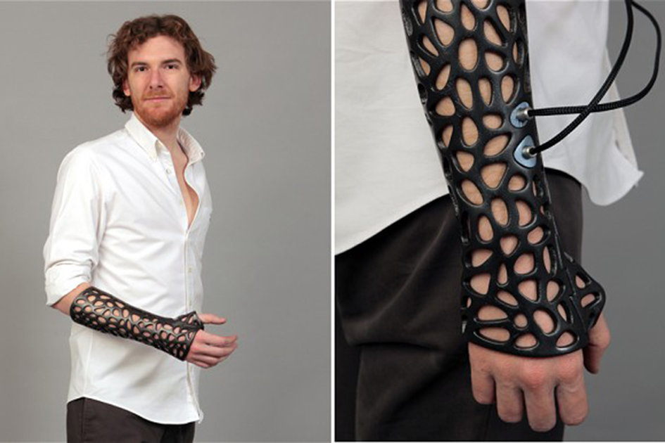 3d Printed Osteoid Cast Could Heal Broken Bones 40 Per