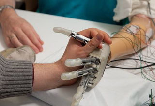 Bionic hand has allowed an amputee to 'feel'