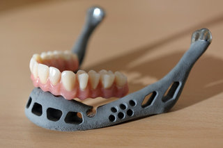 Medical marvels How 3D printing is improving our lives image 11