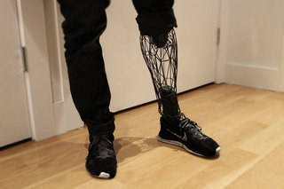 Medical marvels How 3D printing is improving our lives image 35