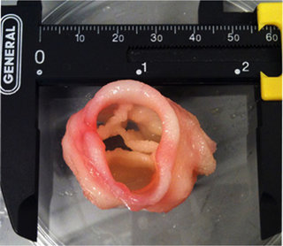 Medical marvels How 3D printing is improving our lives image 8