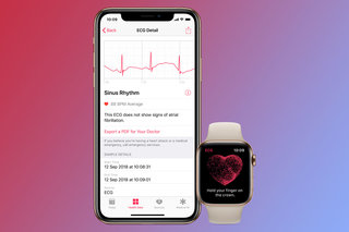 Apple Watch ECG: What is it, how does it work and how do you set it up?