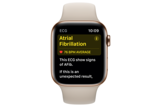 Apple ECG watch images image 3