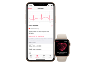 Apple ECG watch images image 6