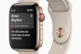 Apple Watch ECG Should you really be able to do an ECG yourself image 2