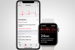 Apple Watch Series 4 users can now take ECGs from their wrists