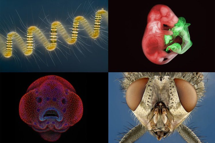 Amazing Images from a Small World. The winning images from Nikon's photomicrography competition